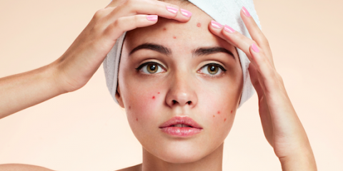 acne-treatment-north-carolina